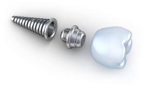 Dental implant 3d crown